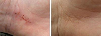 Ein Vorher- und Nachher-Vergleich einer Narbe auf einer Handinnenseite.