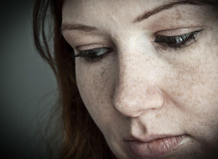Eine Frau mit Sommersprossen sieht seitlich nach unten.