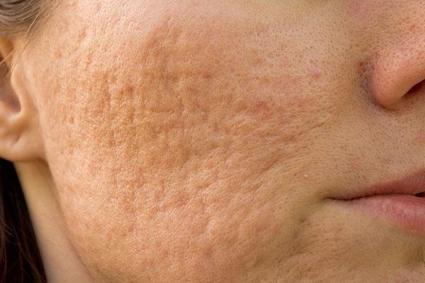 Aknenarben im Gesicht auf der Wange.