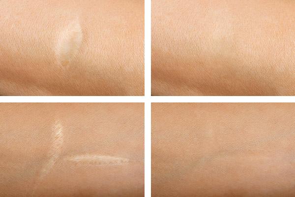 Vergleichsbilder von Narben vor und nach der Behandlung.