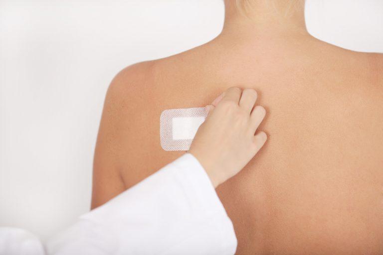 Ein Arzt entfernt ein weißes Pflaster auf der Schulter einer Patientin.